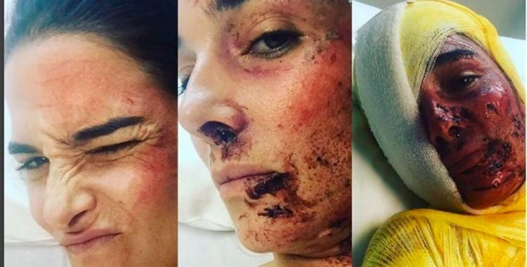 """¿Qué le pasó? el """"terrible accidente"""" de Juanita Viale   El Diario 24"""