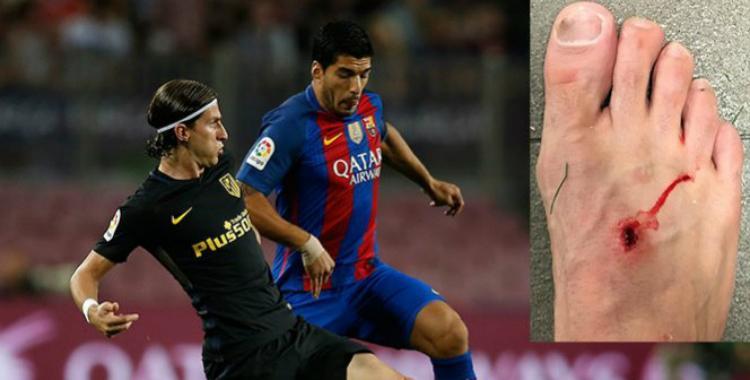 Luis Suárez le perforó el pie a Filipe Luis y le dijo que el fútbol es para hombres   El Diario 24