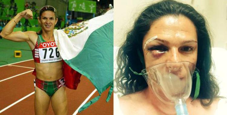 Una medallista mexicana lucha contra la violencia a la mujer tras ser salvajemente agredida | El Diario 24