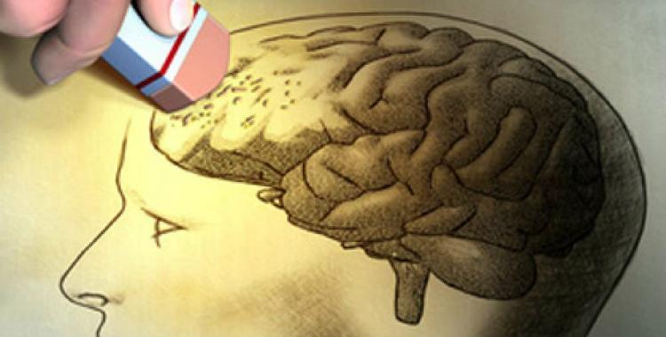 Científicos quedaron asombrados al descubrir qué origina el Alzheimer   El Diario 24