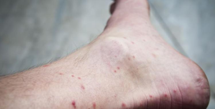 Las picaduras de los mosquitos no son para cualquiera | El Diario 24
