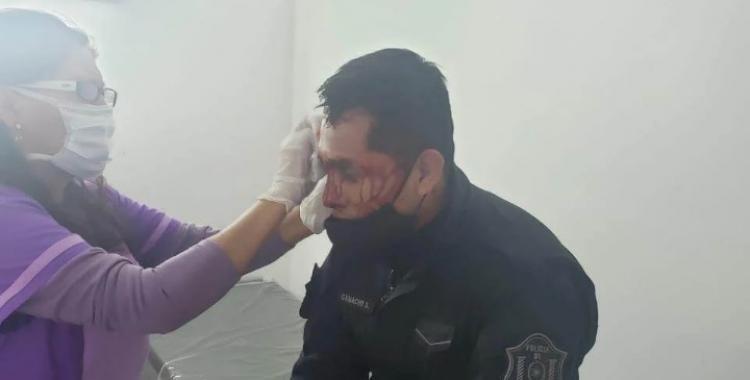 Salta: policías quisieron frenar un partido de fútbol y recibieron un brutal ataque   El Diario 24