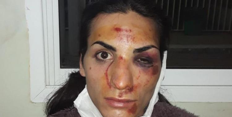VIDEO: Tres mujeres atacaron a golpes y desfiguraron a una trans en plena calle a la salida de una fiesta | El Diario 24
