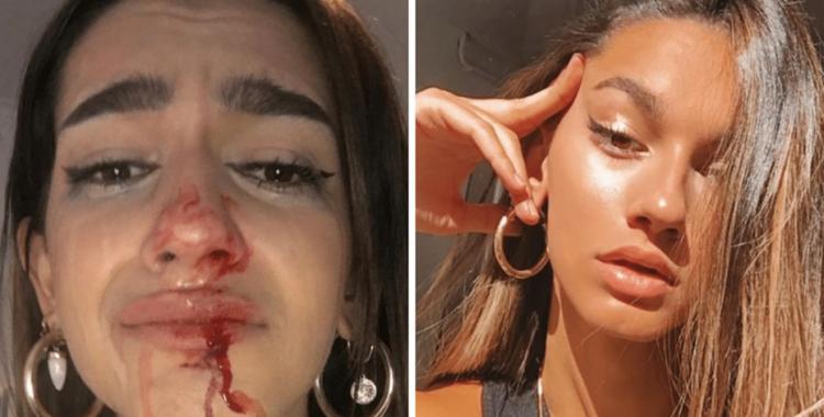 Influecer trans denunció en su cuenta de Instagram que fue víctima de una golpiza en la calle | El Diario 24