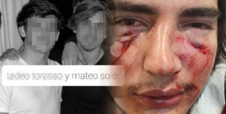 Mi hijo se defendió: Habló Facundo Soler, ex Puma y padre de uno de los denunciados por la golpiza a un joven cordobés | El Diario 24