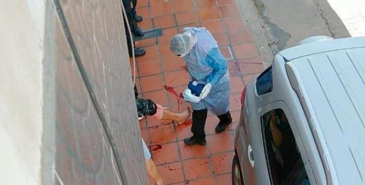 Balearon a un carnicero en una pierna para robarle un bolso con más de medio millón de pesos | El Diario 24