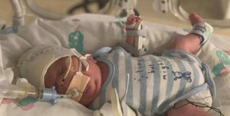 Un bebé nació prematuro, pesó solo 765 gramos y pudo superar el Covid-19 y una infección | El Diario 24
