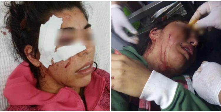 Una joven tucumana fue brutalmente atacada y pide ayuda para encontrar al responsable | El Diario 24