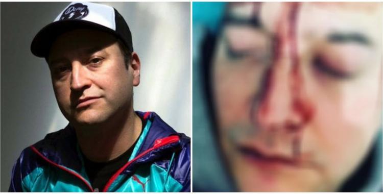 VIDEO Leo García fue víctima de un feroz ataque homofóbico | El Diario 24
