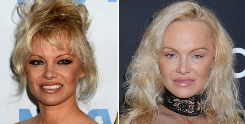 Resultado de imagen para Pamela Anderson antes y después